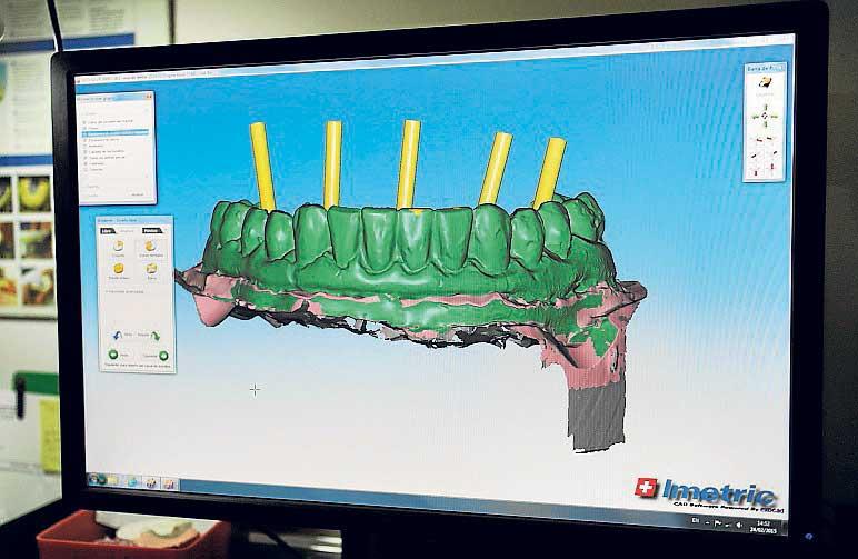 Diseñando prótesis viendo el eje de los implantes por ordenador.