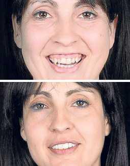 Lydia Almansa (paciente 3182), antes y después del tratamiento.