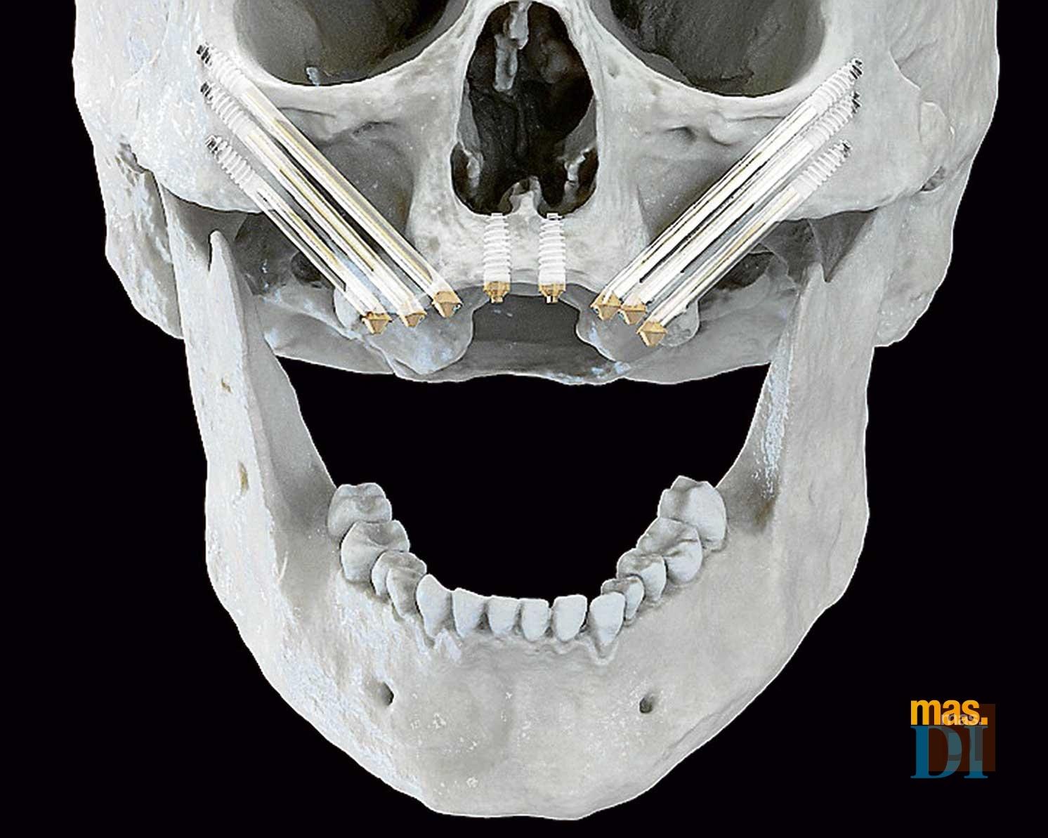 Alternativas a la regeneración ósea