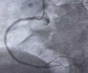 Grupo Policlínica. Acortar tiempos de reacción para sobrevivir a un infarto | másDI - Magazine