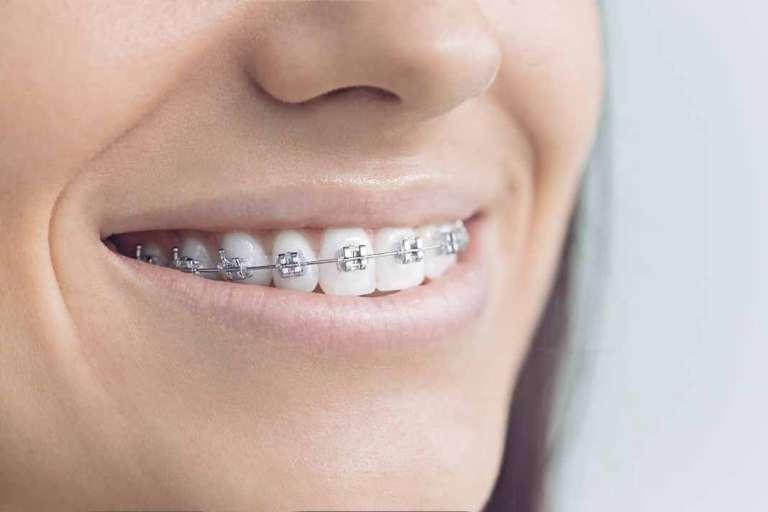 Las últimas tendencias en ortodoncia para 2018
