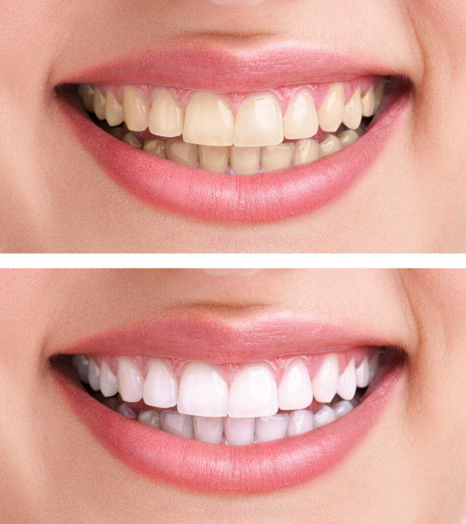 Paula Tur, odontóloga de la Clínica dental Mayans:«todos los dientes se pueden blanquear» | másDI - Magazine