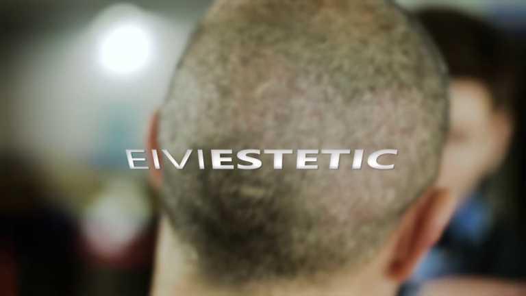 Injerto capilar con todas las garantías y seguridad en Eiviestetic