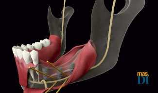 Alternativas a la regeneración ósea | másDI - Magazine