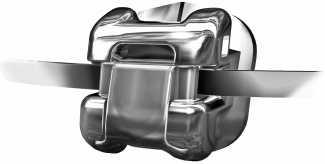 Poner fin a las molestas prótesis dentales con el sistema All on 4® | másDI - Magazine
