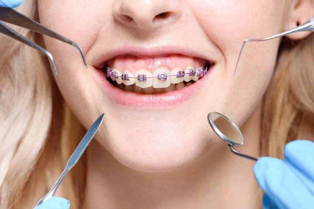 ¿Quién cura las encías? | másDI - Magazine