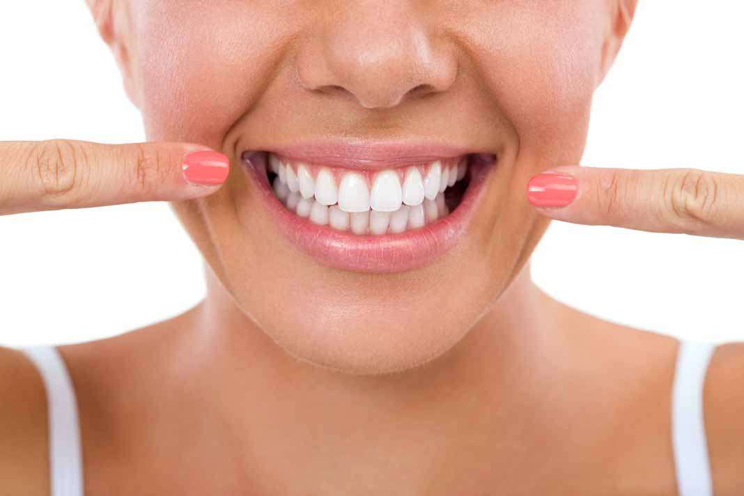 Tener una sonrisa perfecta demuestra una buena salud bucodental. Fotos: istock
