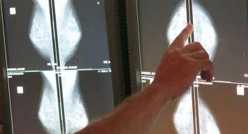 La Unidad de Patología Mamaria de Policlínica Nuestra Señora del Rosario insiste en la importancia de hacer revisiones periódicas.